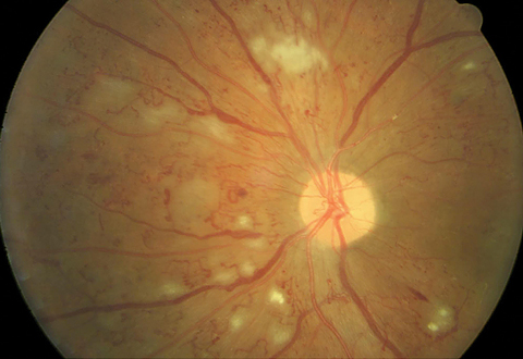 Non-high risk PDR is evidenced by a small amount of neovascularization on the optic nerve. Large amounts of retinal hemorrhages, cotton wool spots and intraretinal microvascular abnormalities (IRMA) are present. Photo: Erik Hanson, MD