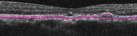 This structural OCT image of the same eye shows RPE elevations and mild foveal subretinal fluid.