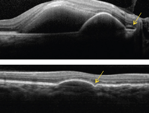 Above, this SD-OCT shows a PCV patient. Note the dome-shaped elevation of RPE with an adjacent double layer sign (see arrow) and a serous retinal detachment. Below, this SD-OCT shows a different patient with PCV demonstrating a PED with a bola sign (see arrow).