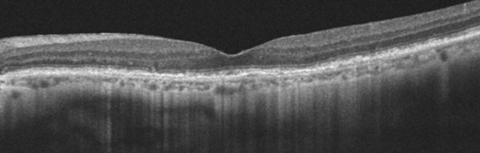 This 77-year-old patient's OCT demonstrates ARAC. The PIL line is intact with slight RPE mottling.