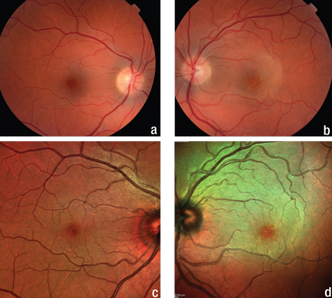 Fig. 1. The fundus and multicolor images of the patient's right eye (a, c) show no abnormalities, but the same images of her left eye (b, d) show a yellow, plaque-like lesion extending from the optic nerve into the superior macula.