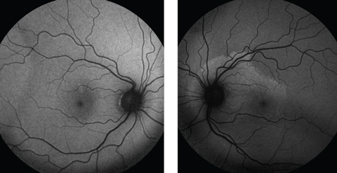 Fig. 3. Fundus autofluorescence demonstrates a normal right fundus, but the left  shows mottled hyperfluorescence around the optic nerve and superior macula, indicating lipofuscin accumulation in the RPE.