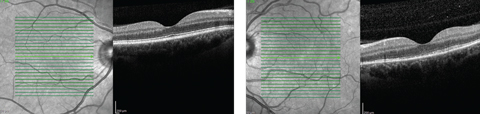 Fig. 2. While our patient's right macula appeared  normal on OCT, her left eye demonstrated a disruption of the PIL.