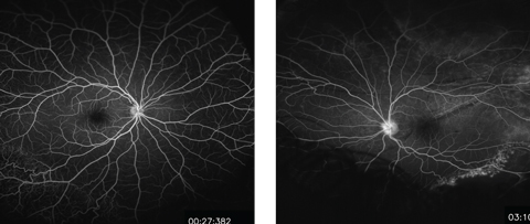 Figs. 3 and 4. These midphase FA images show the patient's right (at left) and left eyes. Do they reveal any pathology?