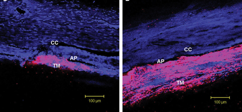 Rho-kinase inhibitors appear to lower IOP by inducing cellular relaxation and disrupting focal adhesions in the TM and the endothelial lining of Schlemm's canal. Photo: Patrick A. Scott, OD, PhD