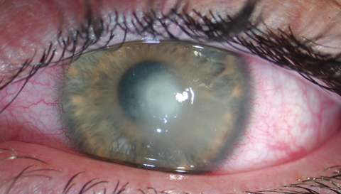 This patient was diagnosed with Acanthamoeba keratitis from wearing soft contact lenses in a hot tub. Photo: Jeffrey Sonsino, OD