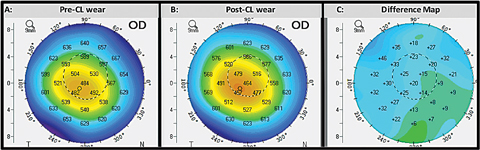 Fig. 4. This comparative display shows the corneal thickness displays of the same eye before (A) and after (B) initiating contact lens wear. The difference map (C) calculates the change in corneal thickness.