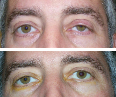 At top, this patient presented with suspected left Horner's syndrome, pre-apraclonidine testing. At bottom, post-apraclonidine testing led to reversal, confirming the diagnosis.