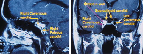 Sagittal MRI (left) shows an Internal carotid artery dissection in the wall of the petrous and cavernous sinus segments. Coronal MRI (right) shows significant narrowing of the carotid lumen in the cavernous sinus and supraclinoid segments of the right Internal carotid artery.