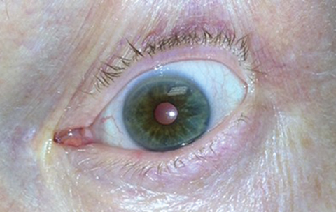 Fig. 2. In the same patient, we observed constriction of the left pupil 30 minutes after instilling 0.125% pilocarpine.