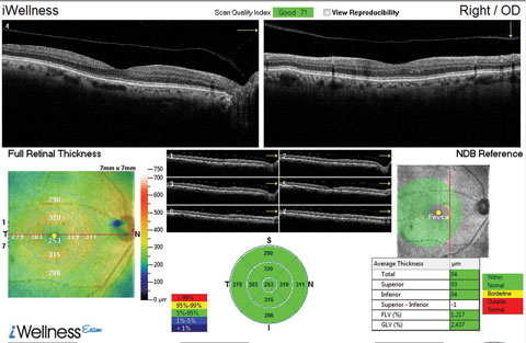 This OCT screening shows a patient who displayed no macular pathology but for a detached vitreous face. The macular exam showed no visible drusen. However, this patient did have early functional signs of AMD when we tested dark adaptation.