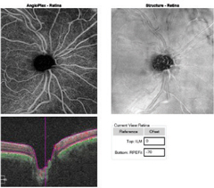 Fig. 3a. This OCT-A angioplex en face scan of the patient's OD (left) with segmentation of the retina shows a dense microvascular network surrounding the right optic nerve.