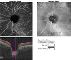 Fig. 3b. The OCT-A angioplex en face scan OS (right) with segmentation of the retina shows the significant dropout in the peripapillary capillary network greatest superior temporal to the optic nerve.