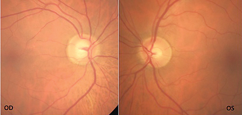 Fig. 1. The patient's fundus photos show inferior temporal rim thinning with vessel bayoneting within the optic nerve OD.
