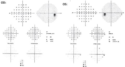 Fig. 3. The 24-2 testing revealed no glaucomatous clusters OD and no correlation to the new RNFL defect OD. An inferior nasal cluster defect was noted OS and did not correlate to structural OCT findings. This cluster was found to be non-repeatable over successive fields.