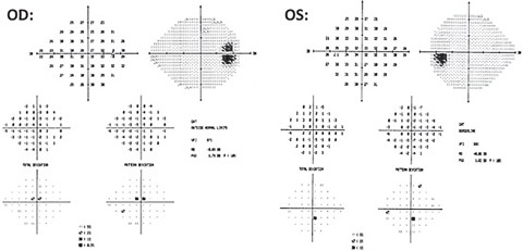 Fig. 4. Repeated 24-2 testing shows point depressions and no glaucomatous cluster defects OU.