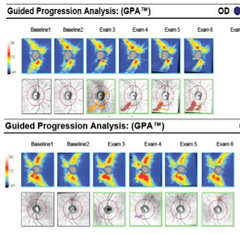 Fig. 7. Serial OCT RNFL progression analysis shows progressive RNFL thinning inferior temporally OD over successive exams compared with baseline one and two. No RNFL thinning is noted OS over six exams compared with normative data.