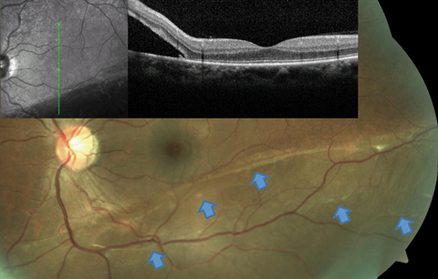 Fig. 3. This RRD patient's OCT image, layered over a fundus photograph, shows partial involvement of the macula, even though the patient is totally asymptomatic from this slowly progressive inferior RD. Blue arrows point to a number of subretinal bands and partial demarcation lines, a testament to the chronicity of the condition.