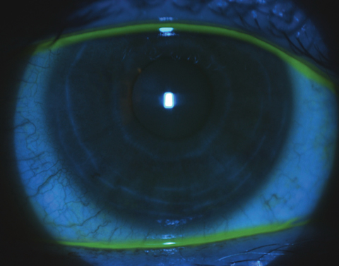 Reduced sodium fluorescein corneal staining of the same patient three weeks post-scleral lens wear.