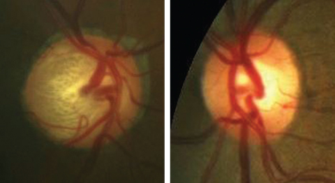 Unilateral glaucoma, as seen in these fundus photos, more severe in the right eye than the left, could elicit an APD in the right eye. Click image to enlarge.