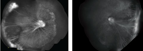 Fig. 2. Do these montage FA images of the patient's right eye (at left) and left eye, taken under anesthesia, point to a diagnosis?