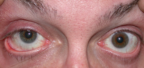 Patients with heterochromia, as seen here, have some procedural options, but with varying degrees of safety. Photo: Aaron Bronner, OD​