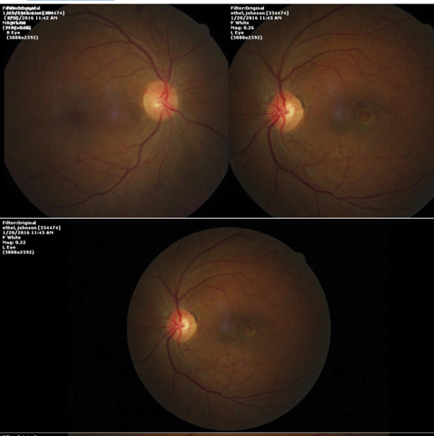 These fundus images show a 68-year-old female patient who presented with trouble reading.