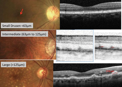 Fig. 1. Fundus photography with corresponding OCT images of small, intermediate and large drusen.