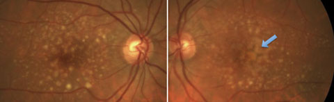 Fig. 2. Both large drusen and pigmentary abnormalities in a patient with a high risk for conversion to advanced AMD.
