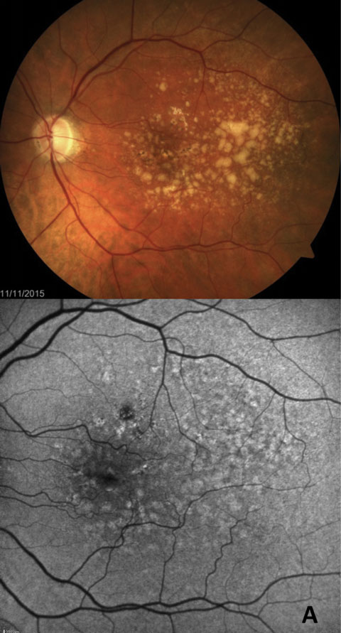 Fig. 5a. FAF more easily highlights early GA formation that is less detectable in fundus examination.