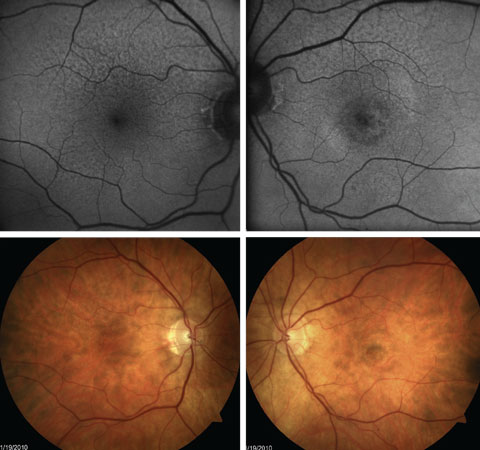 Fig. 6. FAF shows greater extent of RPE abnormality with extrafoveal RPD than is easily seen with fundus photography. This patient also has presence of central CNV OS.
