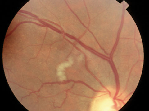 recognizing abnormal vasculature rh reviewofoptometry com Silver Wiring Retinopathy copper silver wiring eye