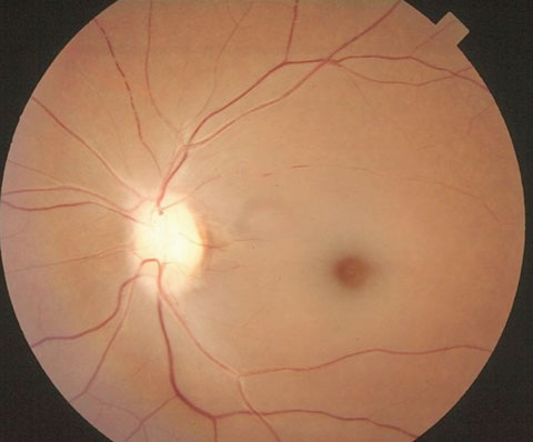 Narrowed, attenuated retinal arterioles in retinal artery occlusion.