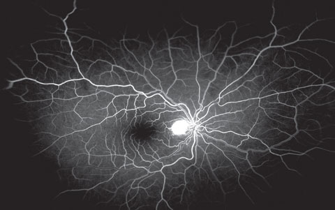 Fig. 4. This is the early venous phase of the fluorescein angiogram of our patient—note the hyperfluorescent lesion involving the optic nerve.