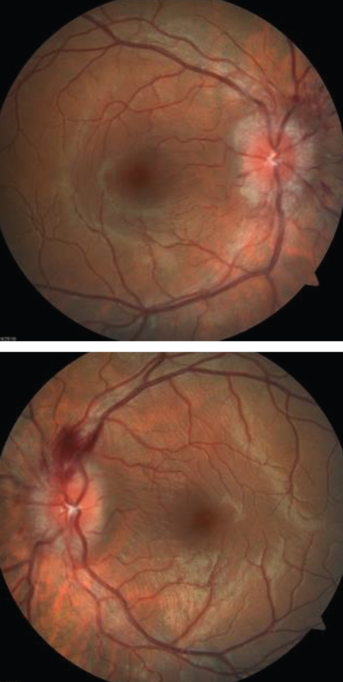 The optic disc edema seen in these fundus images is a telltale sign of the neuro-ophthlamic condition papilledema.