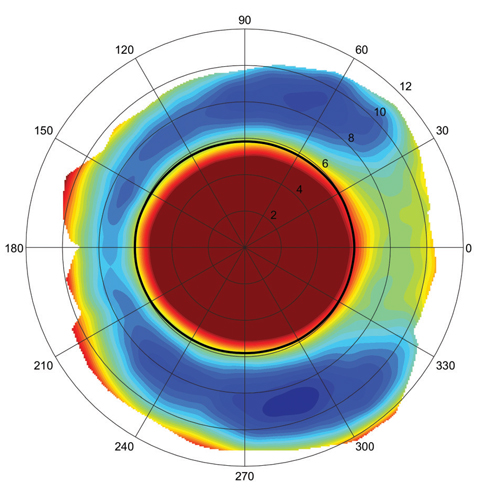 This scleral elevation map shows an asymmetric, atoric sclera, which can lead to poor scleral alignment with spherical or toric haptic lenses. In this case, a sector-specific lens may provide an improved fit. Image: Jason Jedlicka, OD