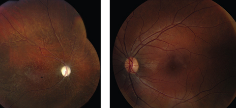 Fig. 1. Fundus photo of the right eye (at left) during the late stage with optic atrophy, retinal arterial narrowing and degenerative changes in the retina. The left eye appears normal.