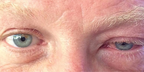 This patient presented with a unilateral ptosis, edema and injection, characteristic of viral conjunctivitis.