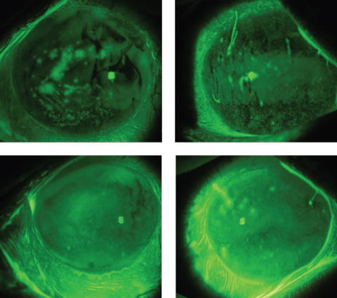 These images depict a GVHD patient's eyes before (top) and after scleral lens wear, showing an improved ocular surface, including a reduction in filaments, after just a few hours of wearing time. Photos: Alan Kwok, OD