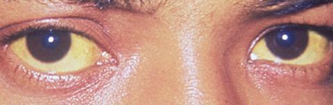 Jaundice and the Eyes