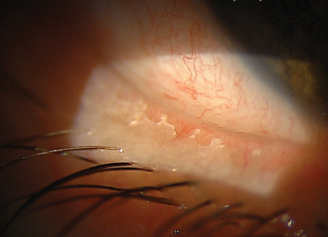 Could Eyelids Be the Key to DED?