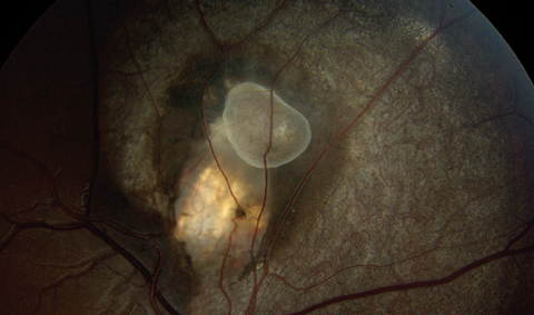 Fig. 1. Fundus photo of the right eye showing the area of interest. What does this represent?