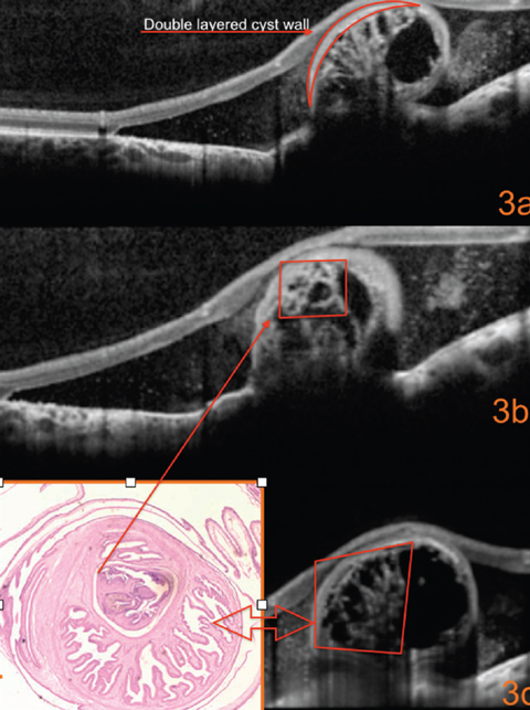 Fig. 3. What can this detailed look at the SD-OCT image reveal?