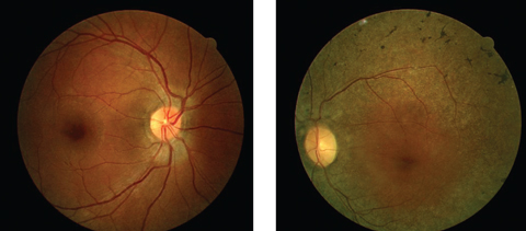 Can these fundus images help point to a diagnosis for this 44-year-old patient suffering from poor night vision?