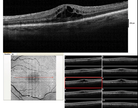 These images show a moderate macular edema, diagnosed four weeks after surgery. With 1% prednisolone acetate QID and flurbiprofen QID, this patient recovered to 20/25 over the course of two months.