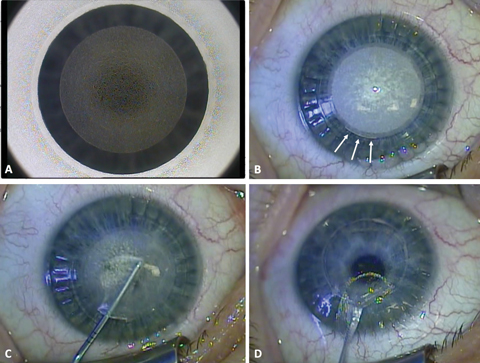 Fig. 1. These images depict the SMILE surgical procedure from start to finish. A) During the laser procedure, the posterior lenticule surface has been cut. B) After the anterior lenticule surface has been cut, a 40-degree incision is created (arrows). C) Next is careful dissection of the lenticule with a blunt Chansue dissector. The superior surface of the lenticule is dissected followed by the posterior surface. D) Finally, the lenticule is extracted through the small periphal incision.
