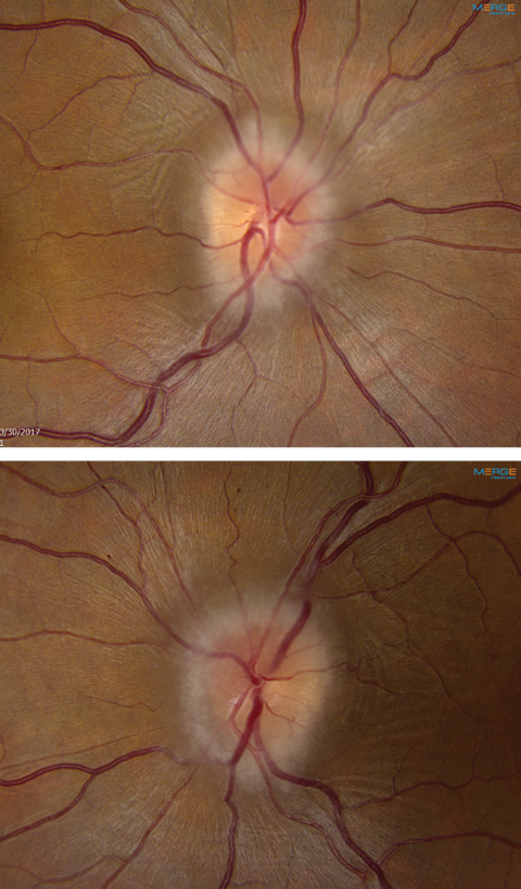 Fig. 1. These fundus images show the right (at top) and left optic nerves of our 34-year-old patient. What can they tell you about her likely diagnosis?