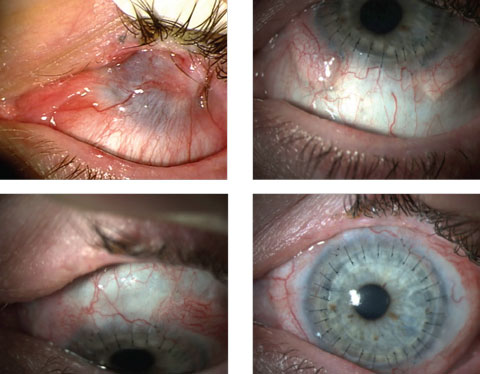 These images show a patient with epithelial defects before (top left) and after stem cell therapy in conjunction with corneal transplantation.