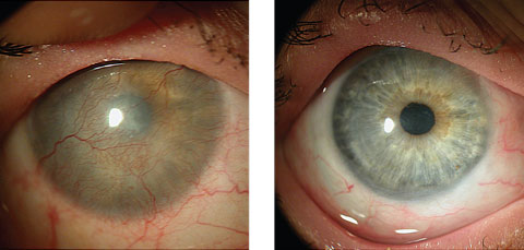 At left, this patient's LSCD was due to Stevens-Johnson syndrome. At right, a CLAL procedure (from her fellow eye) resulted in a healed, smooth corneal surface with no immunosuppression.