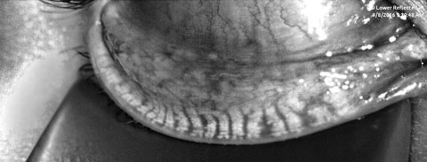 Fig. 1. A patient's meibography displays third degree gland atrophy.